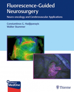 View Details for Fluorescence-Guided Neurosurgery